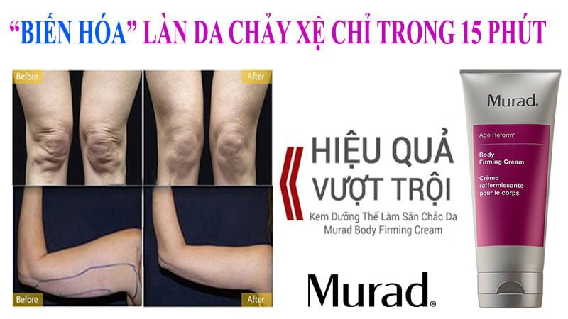Công dụngKem Dưỡng Săn Chắc Da Toàn Cơ Thể Murad Body Firming