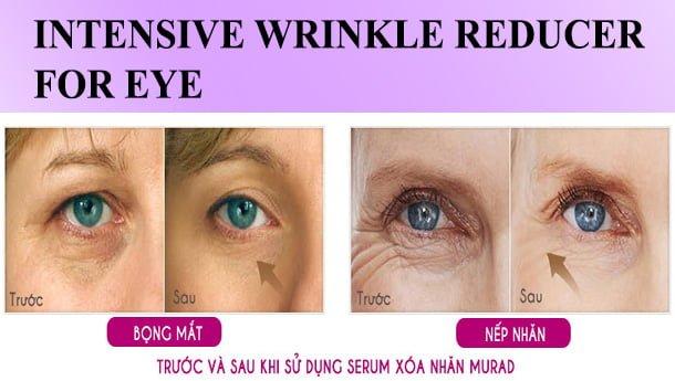 Công dụng Serum Làm Mờ Nếp Nhăn Cho Vùng Mắt Murad Intensive