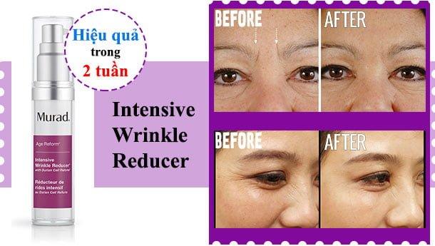 Công dụng Serum Làm Mờ Nếp Nhăn Cho Mặt Murad