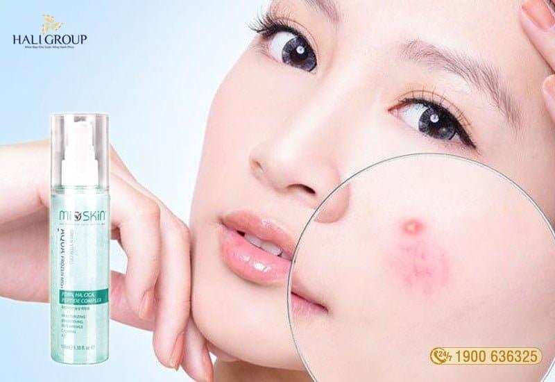 mioskin ngăn ngừa mụn hiệu quả 2