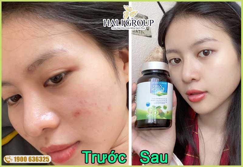 khách hàng sử dụng và review viên uống zero acnes